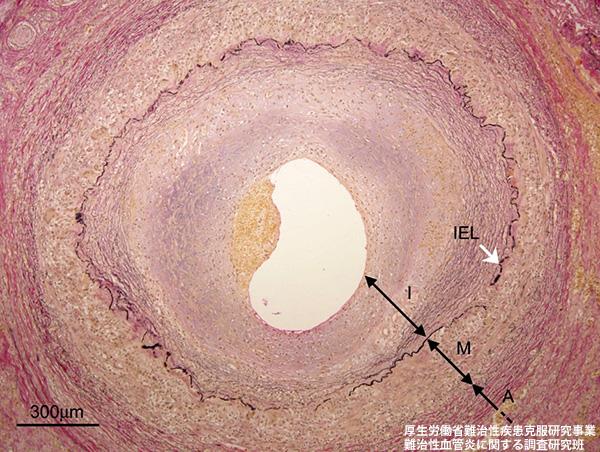 巨細胞性動脈炎(1)|厚生労働省難治性血管炎に関する調査研究班
